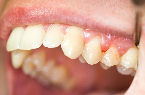 Chảy máu chân răng là dấu hiệu của một số bệnh lý nguy hiểm