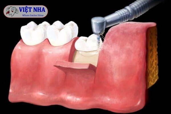 Nhổ răng tiểu phẫu cho răng mọc lệch