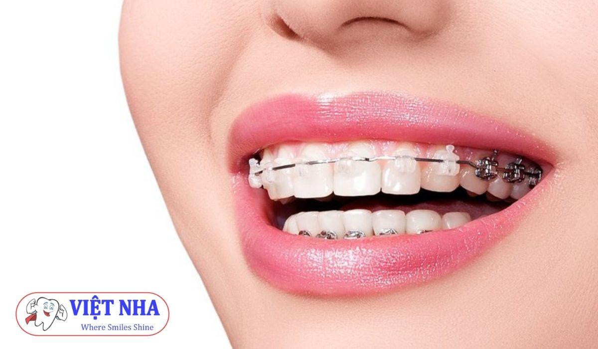 Niềng răng là gì? Răng có yếu đi sau khi niềng răng không?