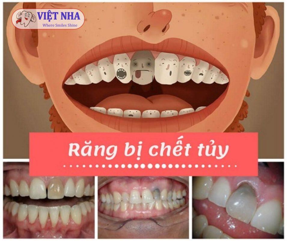 Dấu hiệu của răng chết tủy - răng chết tủy nên trồng Implant hay nên nhổ - Nha Khoa Việt Nha