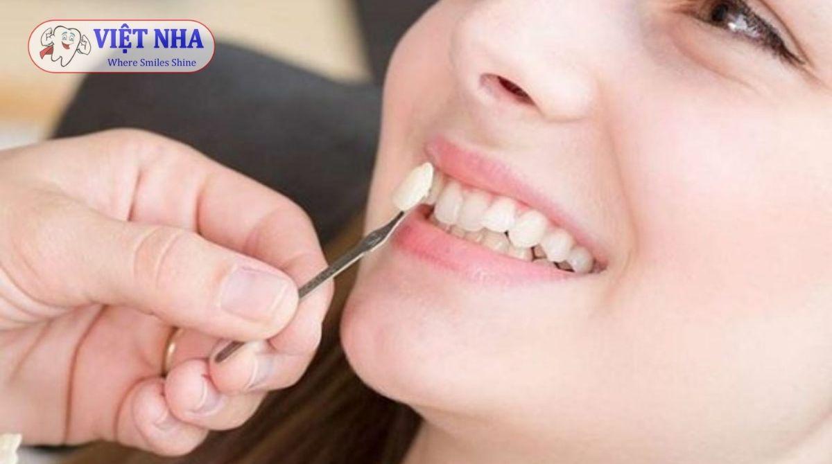 Trồng răng khểnh bằng phương pháp cầu sứ - Nha khoa Việt Nha