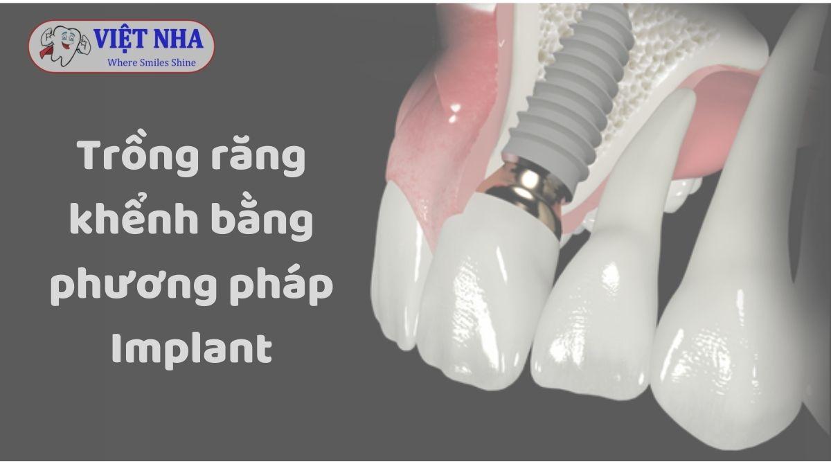 Trồng răng khểnh giả bằng phương pháp Implant - Nha khoa Việt Nha