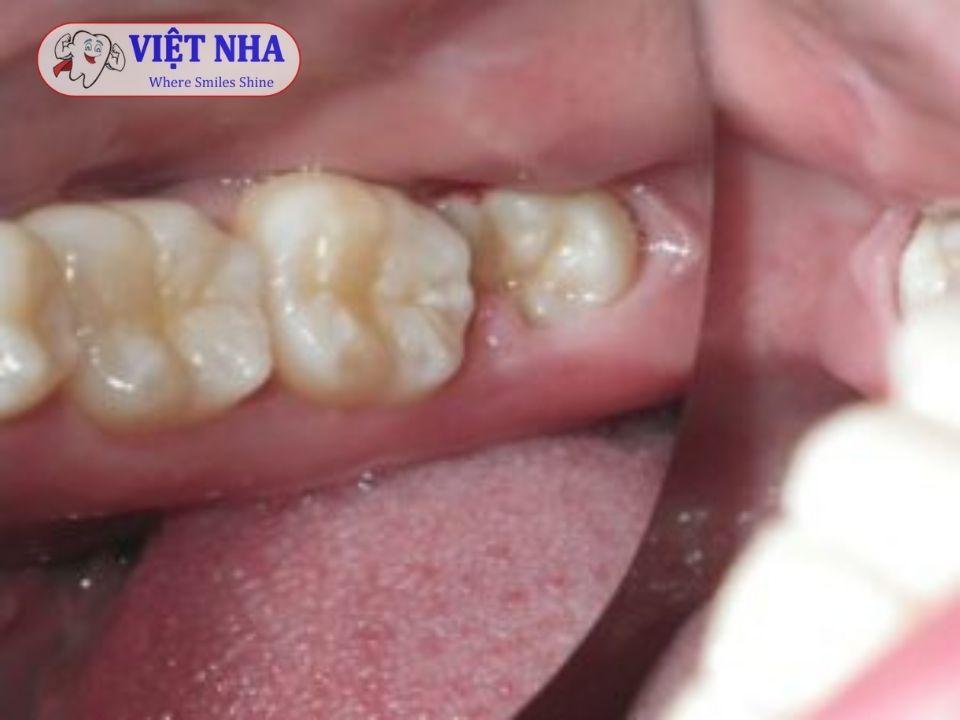 Lựa chọn Nha khoa uy tín để đảm bảo sức khỏe răng miệng cho bạn -  Nha khoa Việt Nha