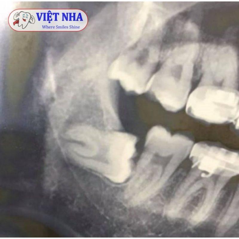 Răng khôn mọc lệch mắc kẹt trong xương hàm - Nha Khoa Việt Nha