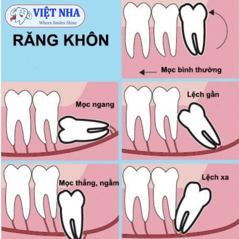 Các kiểu răng khôn mọc lệch bạn cần biết - Nha Khoa Việt Nha