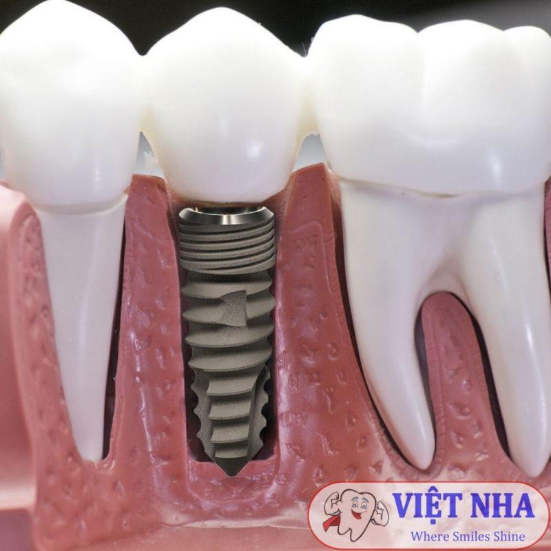 Răng Implant giúp khắc phục tình trạng tiêu xương khi răng chết tủy đã bị nhổ hoàn toàn