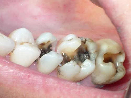 Viêm tủy nếu không được điều trị tủy răng sớm sẽ ảnh hưởng tới răng khác