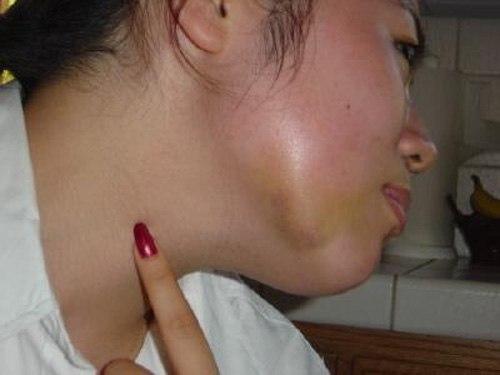 Gương mặt bị sưng to do viêm tủy răng gây nên
