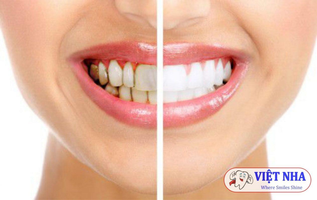 Bọc răng sứ để khắc phục tình trạng răng bị ố vàng, nhiễm màu - Nha khoa Việt Nha