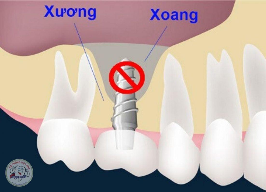 Cấy ghép Implant cần nâng xoang khi nào