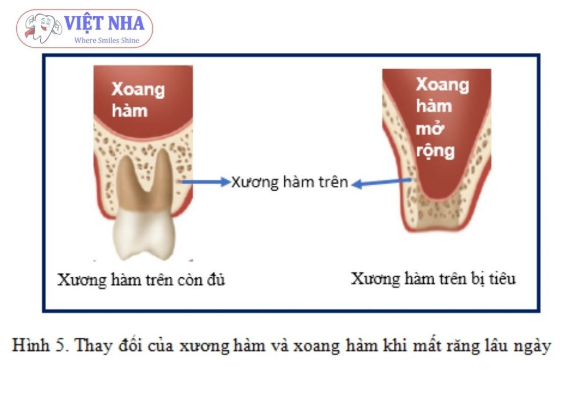 Thay đổi của xương hàm và xoang khi mất răng lâu ngày - Cấy ghép Implant cần nâng xoang khi nào?