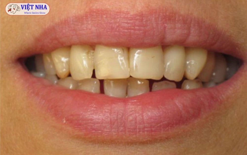 Răng bị ố vàng, nhiễm màu do bị nhiễm tetracycline