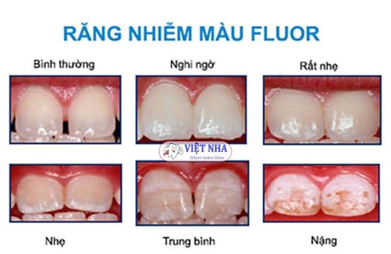Răng bị ố vàng, nhiễm màu do bị nhiễm Flour