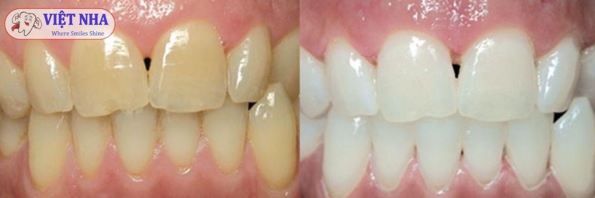 Hiện tượng răng ố vàng, nhiễm màu - Nha Khoa Việt Nha