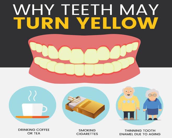 Nguyên nhân dẫn đến răng bị ố vàng, nhiễm màu