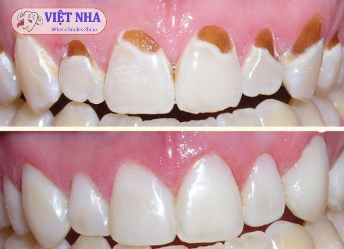 Trám răng thẩm mỹ khôi phục răng rất tự nhiên và bền chắc.