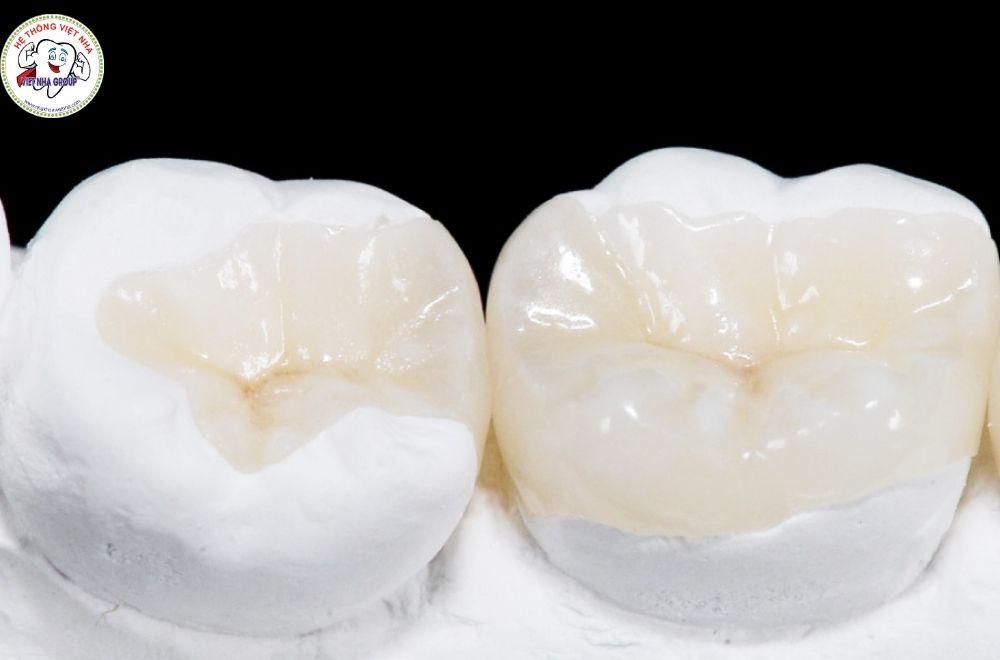 Chất liệu trám răng bằng sứ