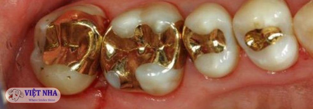 Trám răng bằng kim loại quý