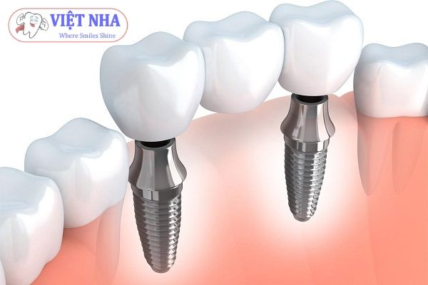 Implant bám chắc vào xương như một chân răng thật.