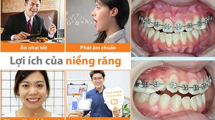 Chỉnh nha - niềng răng phương pháp tốt nhất bảo vệ răng thật