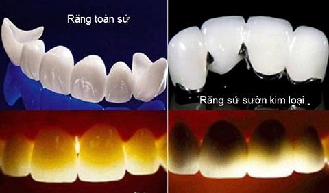 Phân biệt 2 loại răng sứ: Răng toàn sứ - Răng sứ kim loại