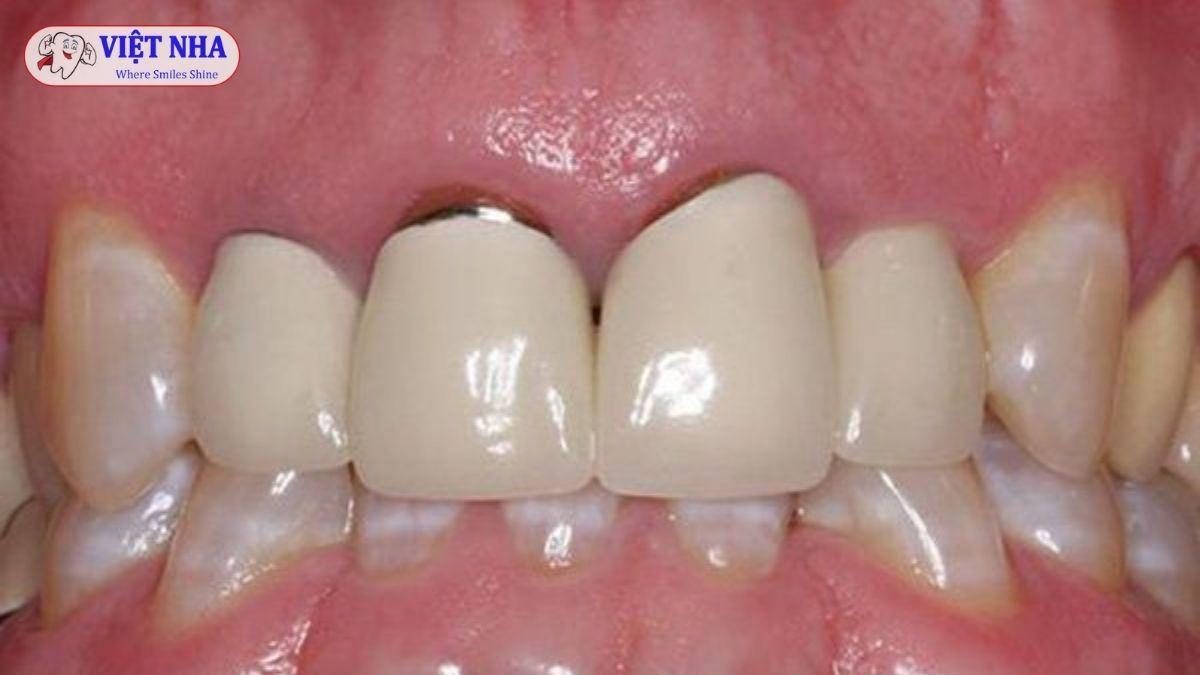 Viêm lợi sau khi bọc răng sứ nguyên nhân do đâu và cách khắc phục