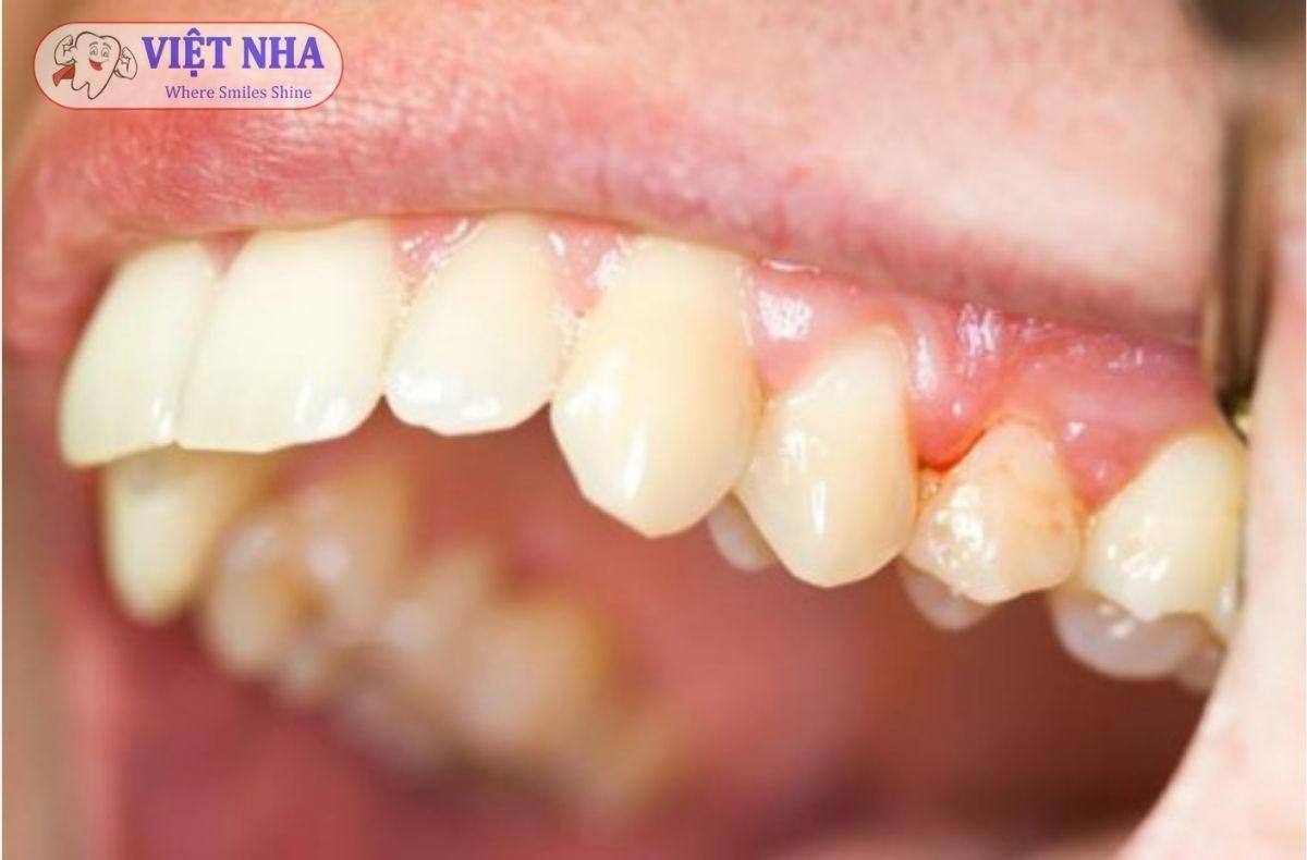 Sưng nướu, Viêm nướu – Bệnh lý răng miệng