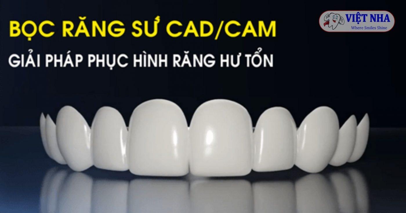 Công nghệ CAD/CAM phục hình răng sức hiện đại