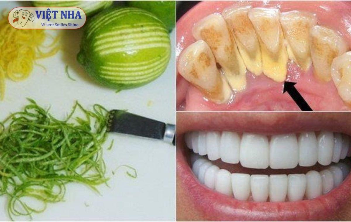 Chăm sóc răng khỏe đẹp với gia vị nhà bếp
