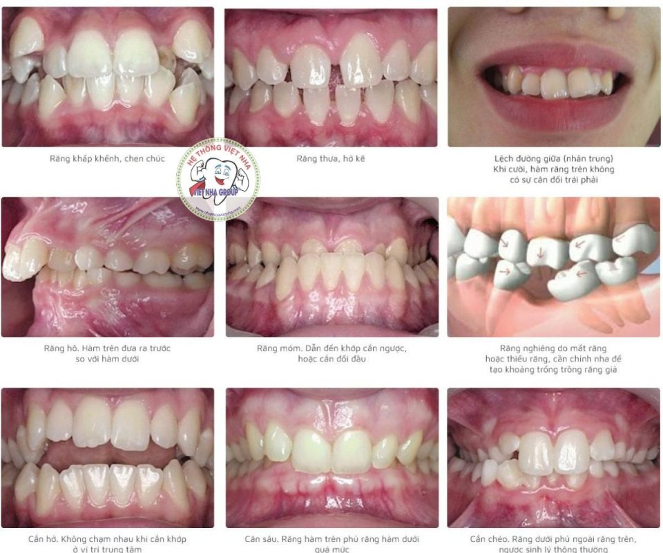 Những trường hợp nên thực hiện chỉnh nha - niềng răng