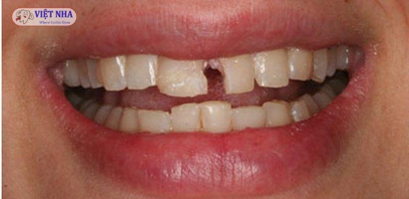 Một số nguyên nhân dẫn đến tình trạng mẻ răng có thể kể đến như chấn thương, nghiến răng, cắn hay nhai vật cứng, men răng yếu bị lão hóa hoặc mài mòn…