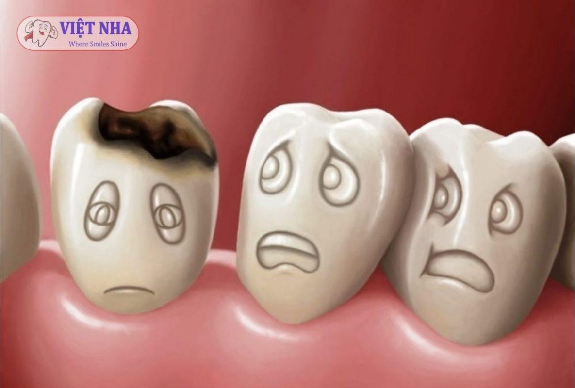 Sâu răng là bệnh lý răng miệng phổ biến có thể dẫn đến mất răng ở tuổi trung niên