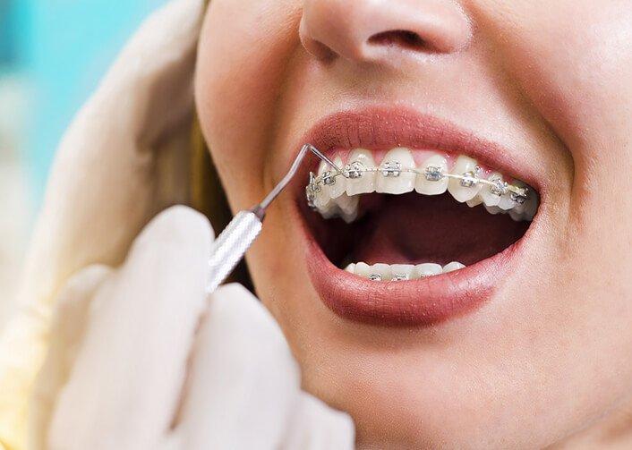 Niềng răng đau cỡ nào - Nha khoa Việt Nha