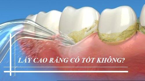 Vệ sinh răng miệng - Nha khoa Việt Nha