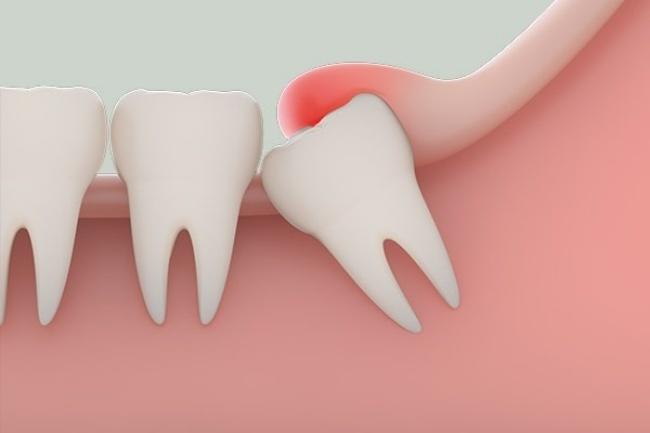 Răng khôn có bao nhiêu cái? Có nên nhổ răng khôn không?