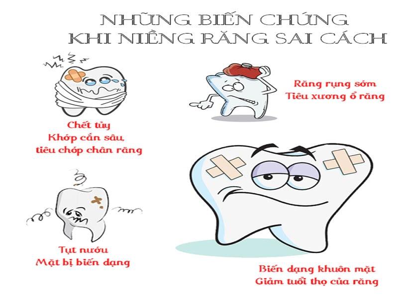 4 tác hại của việc niềng răng sai cách