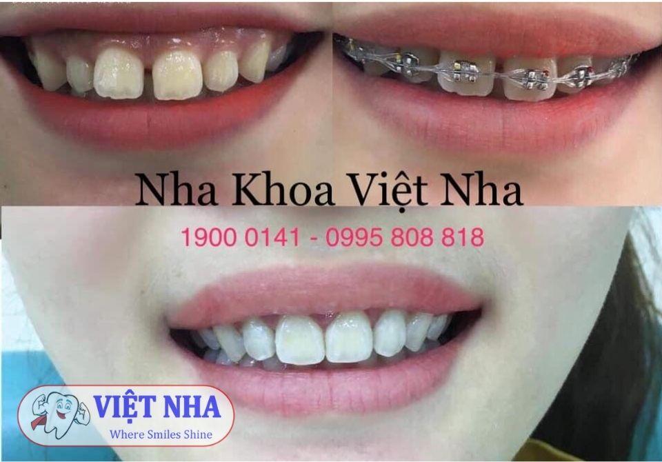 Thời gian Niềng răng bao lâu - Nha khoa Việt Nha