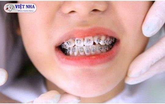 Niềng răng ở tuổi nào là hợp lý nhất