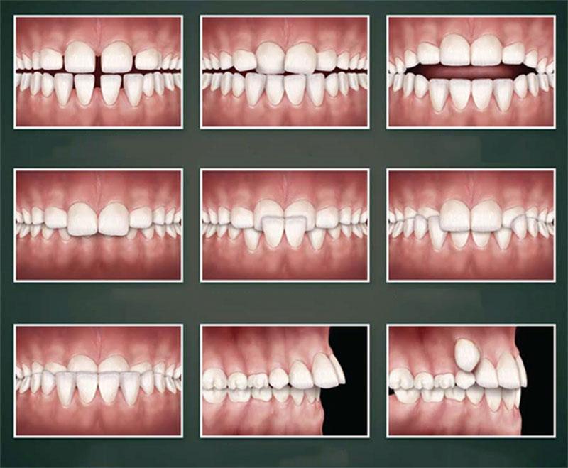 Phương pháp Niềng răng mặt trong - Nha khoa Việt Nha