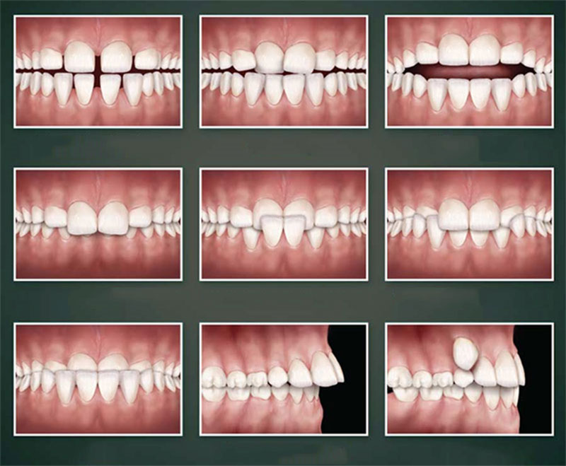 Các mức độ răng - Bảng giá Niềng răng tại Nha Khoa Việt Nha