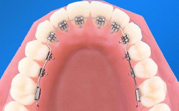 Niềng răng mặt lưỡi - Bảng giá Niềng răng tại Nha khoa Việt Nha