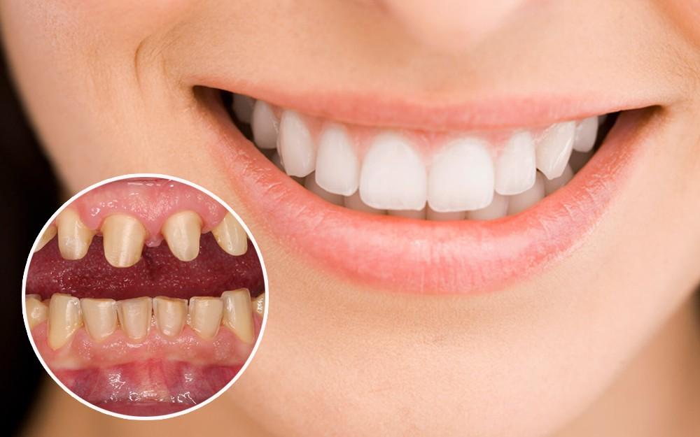 Bọc răng sứ tại Nha Khoa Việt Nha