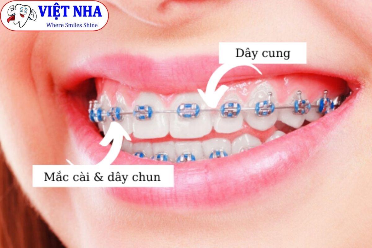 Niềng răng mắc cài kim loại - Bảng giá Niềng răng tại Nha Khoa Việt Nha