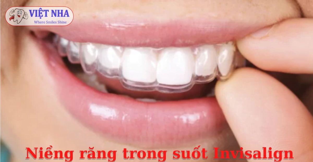 Niềng răng trong suốt Invisalign - Bảng giá Niềng răng tại Nha khoa Việt Nha