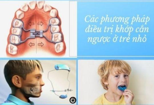 Cách điều trị Răng móm - Khớp cắn ngược tại Nha khoa Việt Nha