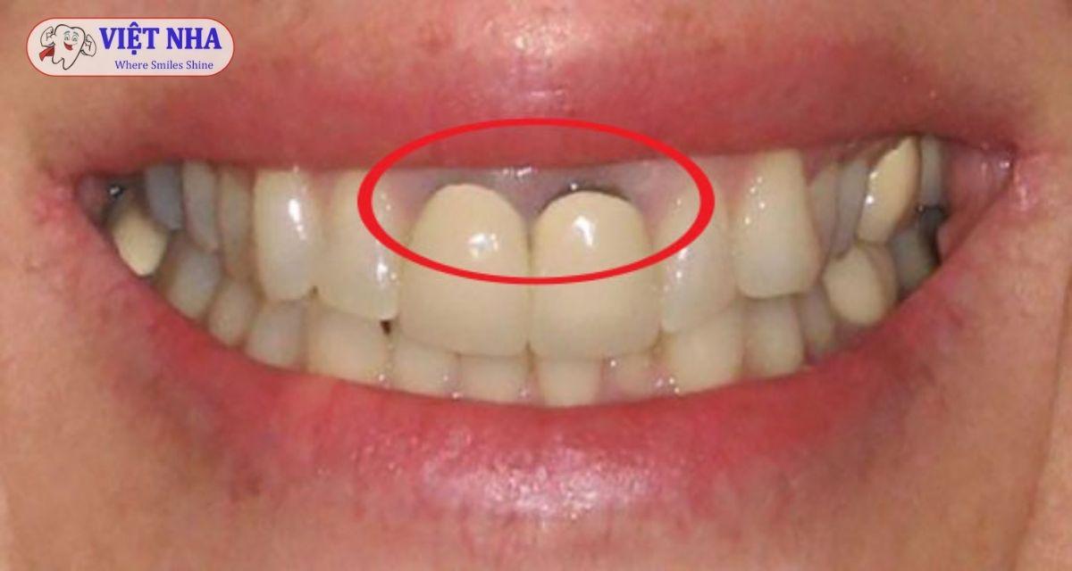 Bọc răng sứ sai cách thường dẫn đến tình trạng đen viền nướu